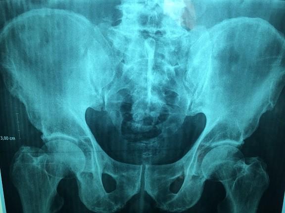 Tłumaczenia medyczne radiologia